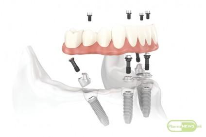 lecenje-sodentalni-implanti