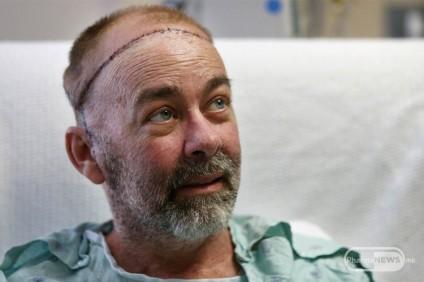 prvata-transplantacija-na-skalp