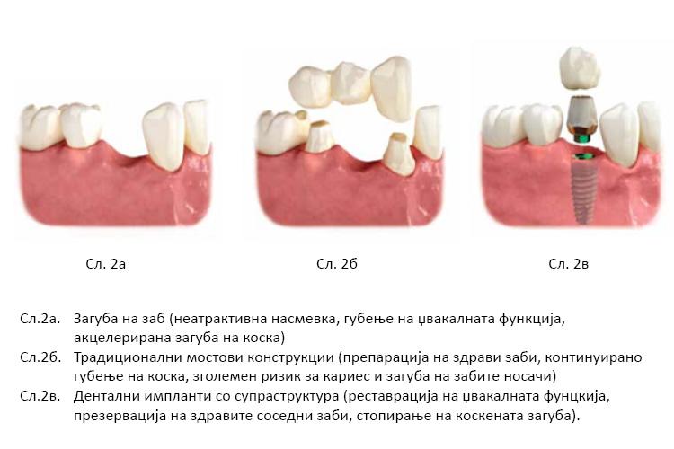 vlijanie-na-zagubata-na-zabite-vrz-estetskiot-i-funkcionalniot-integritet-na-lice-vo-vilicnite-strukturi_2