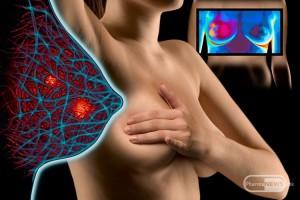 remisijata-na-rak-na-dojka-moze-da-se-predvidi-so-nov-test-na-krv_2