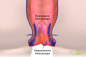 nekolku-raboti-sto-treba-da-gi-znaete-dokolku-imate-problem-so-hemoroidi_image2