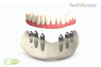 teethxpress-zabi-za-eden-den_image