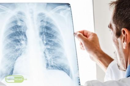 svetski-den-za-borba-protiv-tuberkulozata_image1