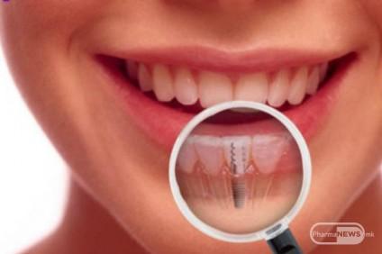 implantacija-vednash-po-vadenje-na-zabot_image