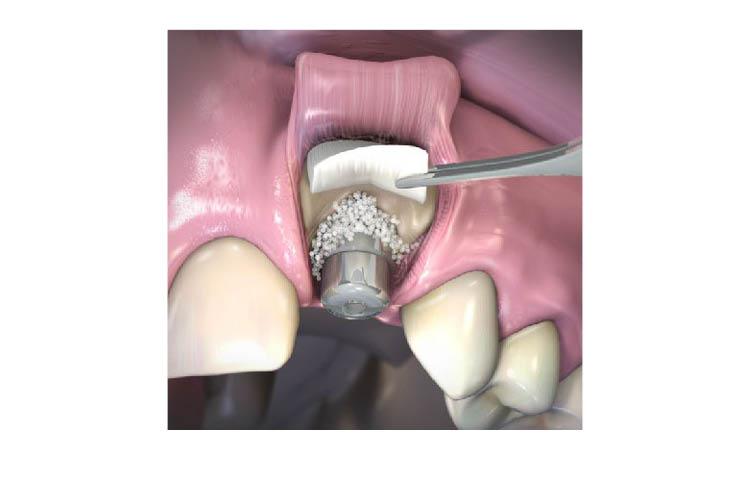 klasifikacija-na-imedijatnata-implantacija-terapiski-opcii_image2
