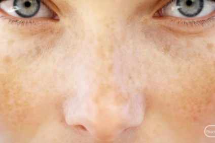 pojava-na-pigmentirana-koza-priciniteli-i-tretman_image