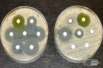 sepak-ima-povrzanost-pomegju-antibioticite-zgolemuvanjeto-na-alergiite_image
