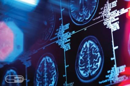 revolucioneren-napredok-vo-ispituvanjata-za-Alchajmerova-bolest