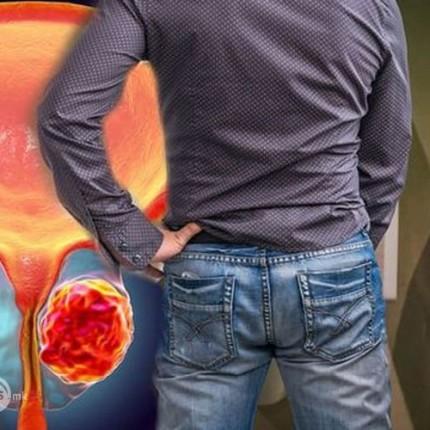 dijagnozata-na-karcinom-na-prostata-ne-bila-nikogash-polesna_image