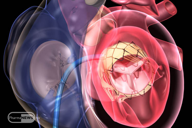 mozhna-li-e-minimalno-invazivna-kardiohirurgija_image