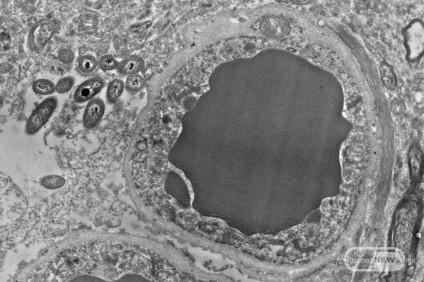 novi-dokazi-deka-nashite-mozoci-bi-mozhele-da-imaat-bakterii-shto-zhiveat-vnatre_image