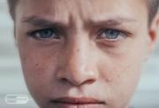 kako-detskiot-artritis-vlijae-na-zdravjeto-na-ochite-kaj-decata_image